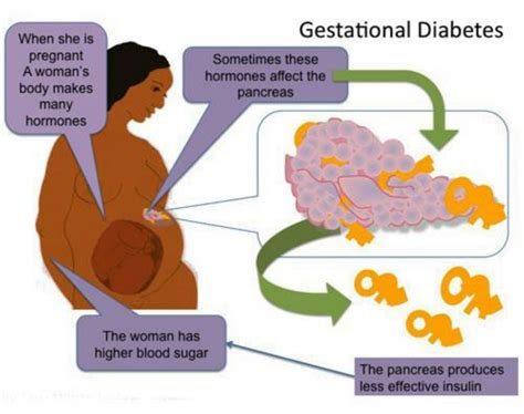 gestational diabetes danii foundation