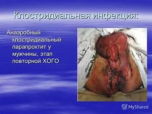 Лечение геморроя лазером в краснодаре отзывы