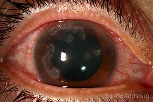 Nocardia Farcinica Keratitis In A Contact Lens Wearer