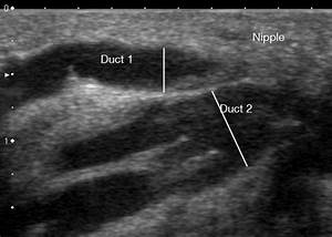 Ultrasound Image Of A Milk Ducts In The Human Lactating
