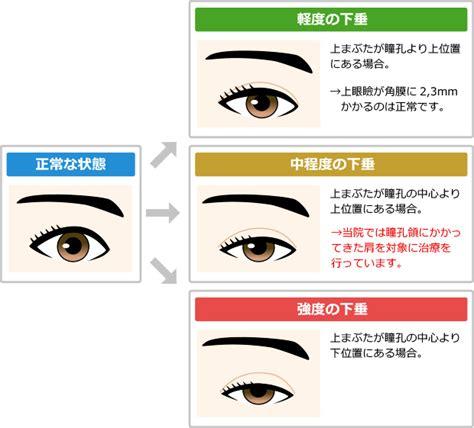 した 瞼 の 痙攣