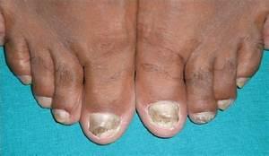 Грибок стопы и голени лечение