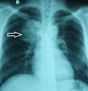 Full Text  The First Report Of Two Cases Of Cystic Echinococcosis In The Lung By