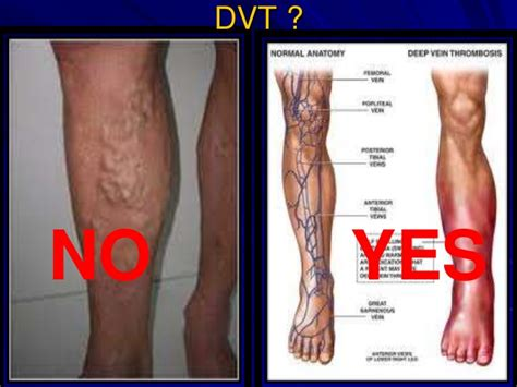 homans sign deep vein thrombosis and pulmonary embolism 2014