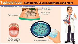 Typhoid Fever Symptoms  Causes  Diagnoses  Treatment And