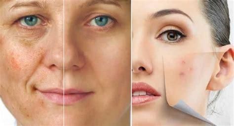 qual peeling para cicatrizes de acne