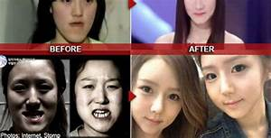 Nothing Really Cosmetic About V-line Jaw Surgery Here ...