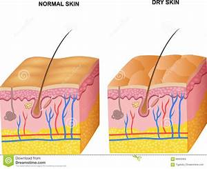 Cartoon Illustration Of The Layers Normal Skin And Dry