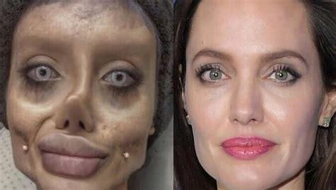 Medijs: Andželinas Džolijas 'zombijlīdziniece' pieslēgta plaušu ventilācijai - DELFI