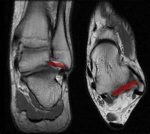 Ankle Ligaments - Foot & Ankle - Orthobullets  Calcaneofibular