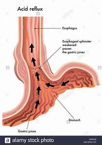 Stomach Oesophagus Esophagus Stock Photo