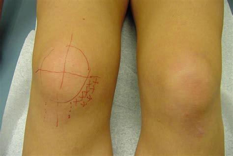 Medial plica syndrome, medial plica irritation, causes, symptoms, diagnosis & treatment