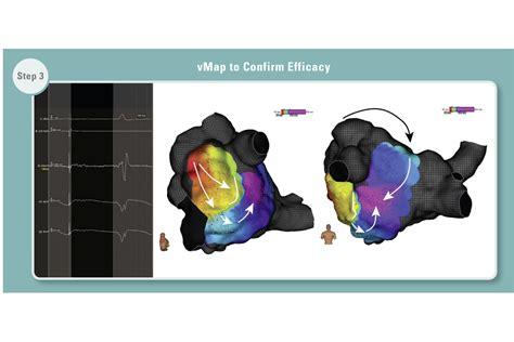Imager™ II Catheters - Boston Scientific