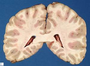 brain frontal section 3 - Humpath.com - Human pathology