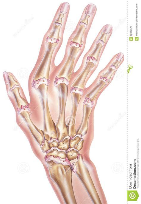 hand und finger arthrose der gelenke stock abbildung