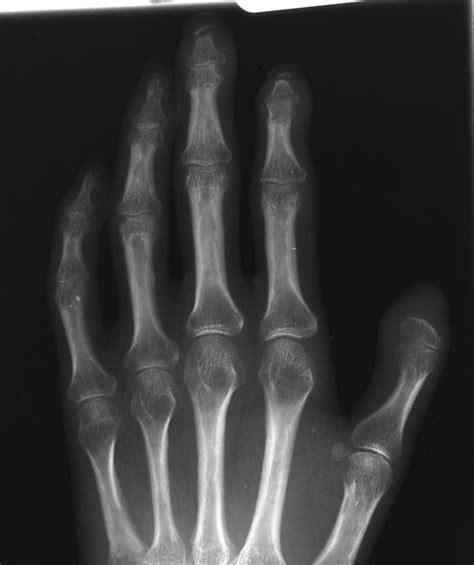 acro osteolysis