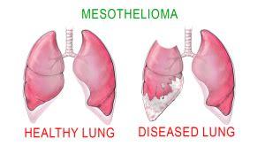 mesothelioma cancer  war  asbestos twisted