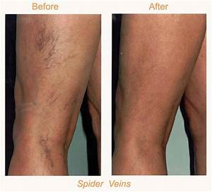 Sclerotherapy BodyLase® Med Spa Raleigh & Cary NC