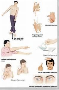 Ataxia Cerebellar signs: gait ataxia Friedreich's Ataxia
