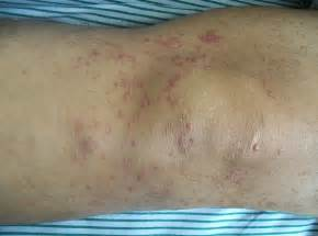 Cutaneous T-cell Lymphoma