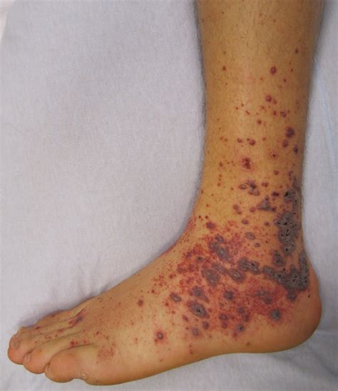 Medical Pictures Info Allergic Vasculitis