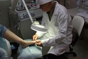 Как вылечить грибок ногтей озонатором