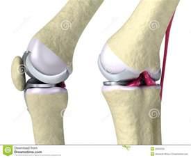 Knee Hinge Joint