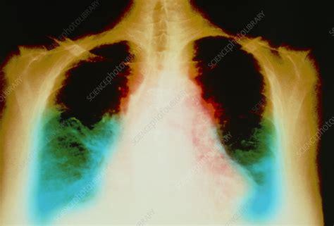 failure ray heart