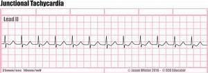 ECG Educator Blog : Junctional Tachycardia