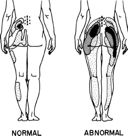 Mild multilevel facet arthropathy