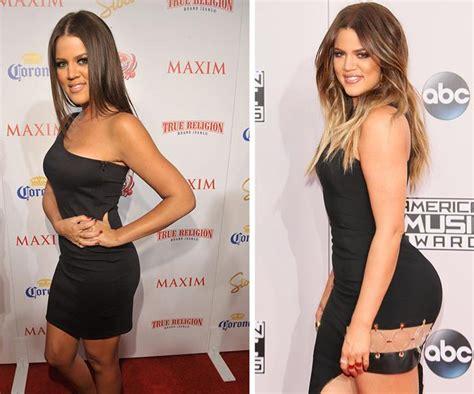 Khloe Kardashian's selfie sparks bum implant claims ...