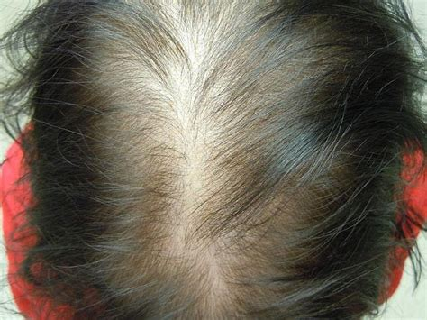 women  hair loss affecting   confidence