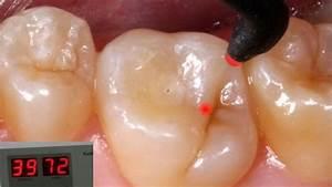 Laser Dentistry  U2013 Dental Solutions