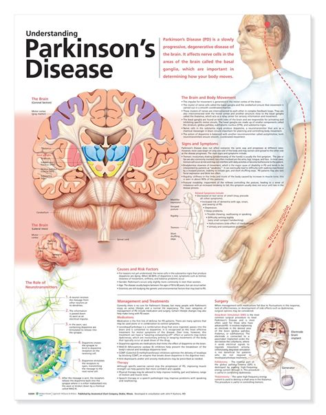 Understanding Parkinson's Disease Anatomical Chart, 2nd