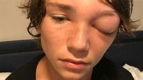 blind in one eye teen blind in one eye after infection on family cruise