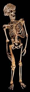 The skeleton of Joseph Carey Merrick - image Ray Crundwell ...