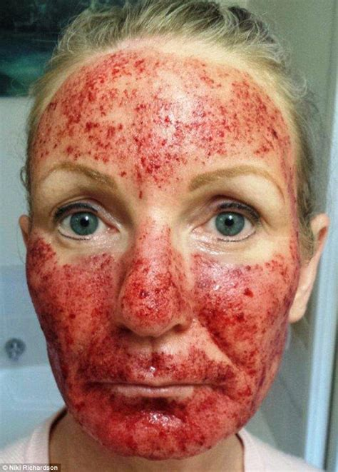 woman left  blistered skin  months  laser