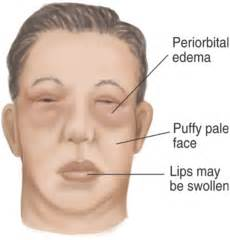 Examination of the neck & head Flashcards   Quizlet