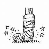 Leg Broken Drawing Injury Bandage Cast Clipart Clip Vector Illustrations Injured Illustration Cartoons Sketch Orthopedic Hand Royalty Foot Background Arm sketch template