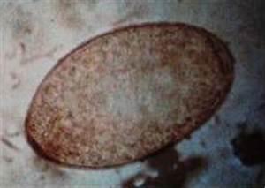 Maden In Kirschen : wie oft wenn w rmer den magen verletzen ~ Lizthompson.info Haus und Dekorationen