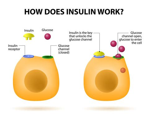 type  diabetes  insulin types  insulin