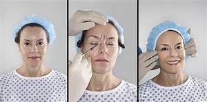 Kosmetisk kirurgi