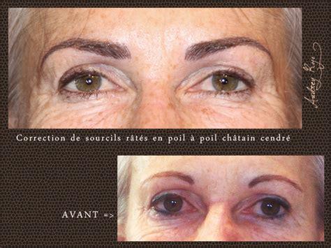 Maquillage Permanent Sourcils Raté