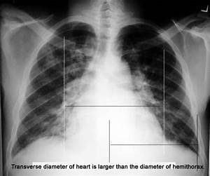 Cardiomegaly
