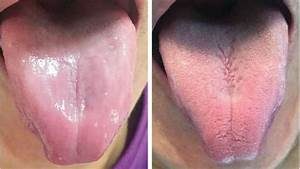 This Man U0026 39 S Tongue Lost Its Taste Buds And Became Completely Smooth