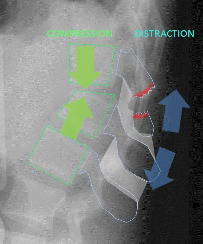 chance fracture flexion distraction injury spine