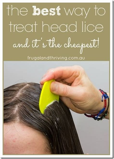the best way to treat lice is also the most frugal