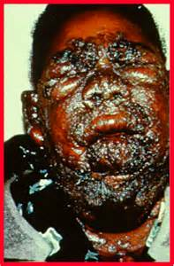 ... skin lesions for sev months on nose, face & arms. Mild lower resp Skin lesion of coccidioidomycosis