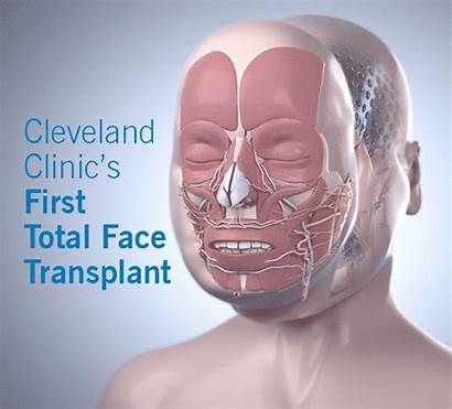 Face Transplant Total Cleveland Clinic Health Badge