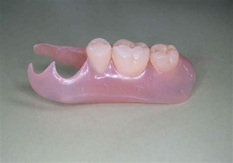 奥歯 の 入れ歯